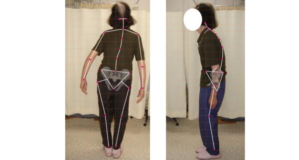 口コミで評判のカイロプラクティック、整体、接骨院、整骨院が教える、腰の痛みの治し方。