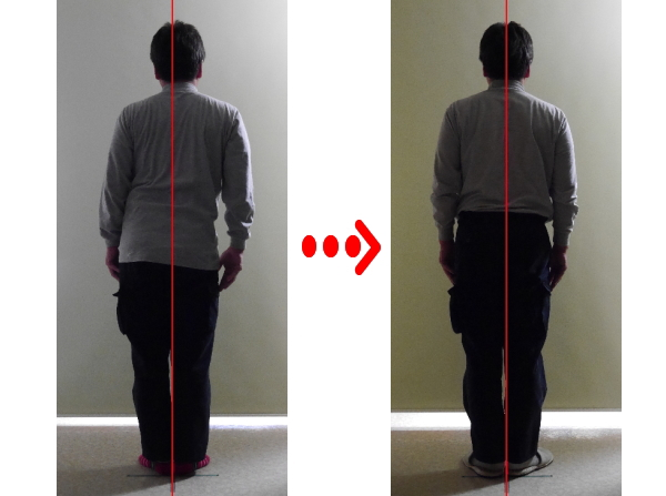 悪い姿勢は、原因不明の症状や内臓機能の異常の要因になります。 姿勢を整えることは、健康を保つ為に必用です。 姿勢を矯正することによって背骨の中の神経圧迫を取り除き、神経機能を整えます。 口コミで評判の静岡県浜松市東区の姿勢矯正を行うカイロプラクティック、整体院。