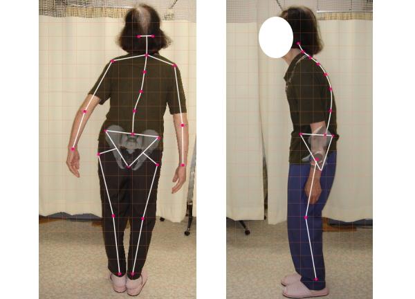 ch1-197jpg。浜松市西区、周辺のカイロプラクティック/整体。。 椎間板ヘルニア、良くなります。 ヘルニアは、病院で手術をしないと治らないと聞いたことは、ありませんか?現実は違います。 ほとんどの腰椎椎間板ヘルニアは、病院で外科手術をしなくても治癒することができます。 腰椎椎間板ヘルニアは、椎間板の繊維が神経の側に出っ張ることによって痛みや痺れなどの症状が出現します。 浜松市西区、周辺で、カイロプラクティック、整体をお探しなら当院まで。 当院の整体/カイロプラクティックでは、背骨の矯正と一緒に椎間板の治療を行います。 当院は、カイロプラクティック/整体専門の治療院です。 安心して施術が受けられます。 浜松市西区、周辺で整体/カイロプラクティックをお探しなら、こちらまで。