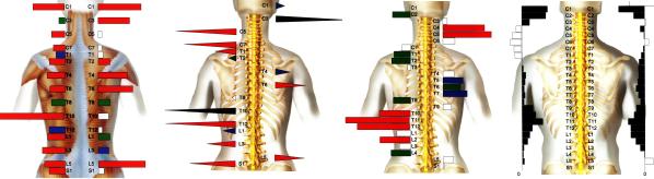 ch1-154png。 背中の痛みと悩んでいませんか?背中が凝ると悩んでいませんか?背中の痛みやコリの大多数は治すことができます。 背中の痛みや凝りの発症する原因の大多数は関節の歪みが原因です。 浜松市西区でカイロプラクティック、整体をお探しでしたら、口コミで評判のカイロプラクティック/整体をおススメします。 背中の痛み/コリは、早期改善することが大切です。 背骨のズレは、そのままにしておくと痛みや凝りが増していきます。 背中の痛みや凝りには、突然出る症状から慢性的に症状が続くものまで様々です。 背中の痛みの多くが、筋肉・骨格系のものです。 当院は、浜松市西区の筋肉/骨格系の治療の専門院です。 背骨矯正のことなら任せて下さい。 口コミで評判の整体、カイロプラクティックです。