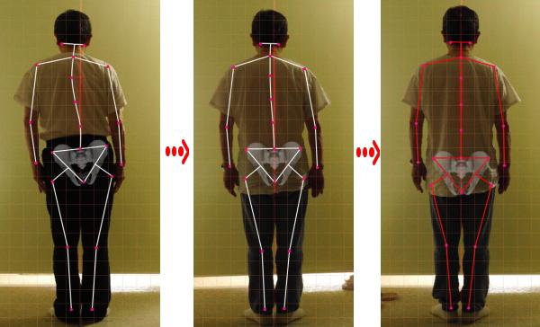 ch1-192jpg。 背骨の歪みや側弯症で悩んでいませんか?脊椎側弯症の多くは、良くなります。 側弯症の改善に最も効果は発揮するのが、整体、カイロプラクティックの背骨矯正です。 浜松市南区の脊柱側弯症の矯正で口コミで評判の整体、カイロプラクティックの治療院はコチラ。 脊椎側弯症には二種類のタイプがあります。 日常生活の癖が原因の脊椎側弯症と原因のよく分からない咳津の変形を伴う特発性の脊柱側弯症です。 特発性の脊椎側弯症の場合は、完全に治すことは、不可能です。 しかし、ある程度まで歪みを改善することは、できます。 姿勢や生活習慣による側弯症の大多数は、改善することが、可能です。 多くの側弯症悩んでいる人が治っています。 脊柱側弯症の治療をしてみたいと思った方は、浜松市南区の口コミで評判のカイロプラクティック、整体まで。 多くの脊柱側弯症は、カイロプラクティック、整体の治療で治ります。 諦める必要はありません。 脊椎側弯症は、放置すると悪化します。 カイロプラクティック、整体の治療で治しましょう。 口コミで評判の浜松市南区の整体、カイロプラクティックの治療院は、コチラ。