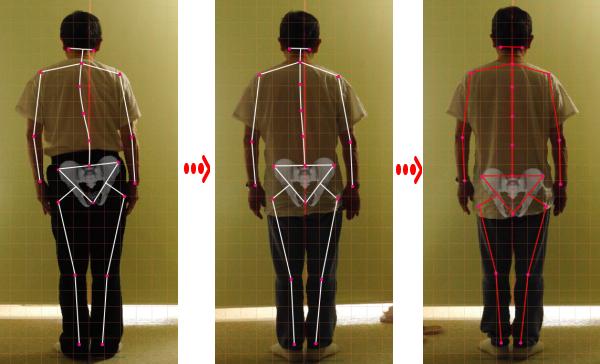 ch1-192png。 側弯症の多くは、治ります。 背骨の歪みや側弯症で困っていませんか?側弯症には二種類のタイプがあります。 日常生活の癖が原因の側弯症と原因の特定できない骨格の変形を伴う特発性の脊椎側弯症です。 特発性の脊椎側弯症の場合は、完全に良くすることは、できません。 しかし、完全に真っ直ぐにはできなくても歪みを減らすことは、できます。 側弯症の治療に最も有効なのが、整体、カイロプラクティックの背骨矯正です。 静岡県磐田市、周辺の脊柱側弯症の矯正で口コミで評判のカイロプラクティック、整体の治療院はコチラ。 普段の姿勢が原因になる脊椎側弯症のほとんどは、良くすることが、できます。 多くの側弯症で悩む人が改善しています。 脊椎側弯症の治療を受けたいと思った方は、静岡県磐田市、周辺の口コミで評判の整体、カイロプラクティックまで。 多くの脊椎側弯症は、整体、カイロプラクティックの治療で治ります。 諦める必要はありません。 脊柱側弯症は、放置すると悪化していきます。 カイロプラクティック、整体の治療で治しましょう。 口コミで評判の静岡県磐田市、周辺の整体、カイロプラクティックの治療院は、コチラ。