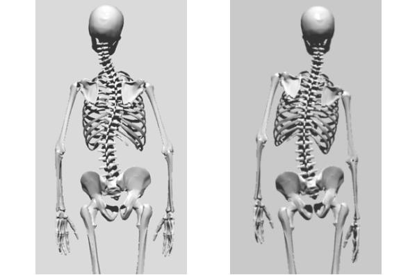 ch1-201png。静岡県磐田市、周辺のカイロプラクティック、整体。 脊椎側弯症の多くは、良くなります。 背骨の歪みや側弯症で悩んでいませんか?脊椎側弯症には二種類のタイプがあります。 普段の姿勢が原因になる脊椎側弯症と原因のよく分からない骨格の変形を伴う特発性の脊椎側弯症です。 特発性の側弯症の場合は、完全に治癒させることは、不可能です。 しかし、ある程度まで歪みを軽減することは、できます。 脊椎側弯症の治療に最も効果は発揮するのが、整体、カイロプラクティックの脊椎、骨盤矯正です。 静岡県磐田市、周辺の脊椎側弯症の矯正で口コミで評判のカイロプラクティック、整体の治療院はコチラ。 日常生活の癖が原因の側弯症の多くは、良くすることが、できます。 多くの脊柱側弯症悩んでいる人が治っています。 側弯症の治療をしてみたいと思った方は、静岡県磐田市、周辺の口コミで評判の整体、カイロプラクティックまで。 多くの脊椎側弯症は、整体、カイロプラクティックの治療で改善されます。 諦めてはいけません。 脊椎側弯症は、放置するとどんどん悪くなっていきます。 カイロプラクティック、整体の治療で治しましょう。 口コミで評判の静岡県磐田市、周辺の整体、カイロプラクティックの治療院は、コチラ。