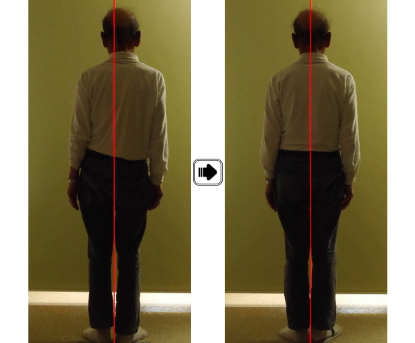 脊柱側弯症、カイロプラクティック