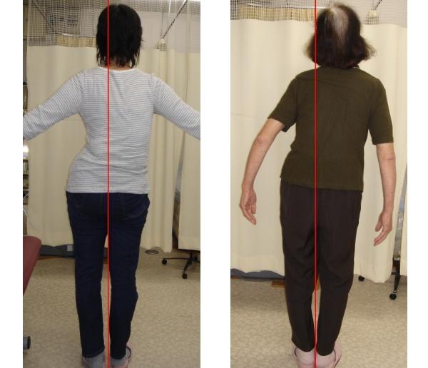 ch1-203jpg。 脊椎側弯症で悩んでいませんか?脊椎側弯症の多くは、良くなります。 脊椎側弯症の改善に最も効果は発揮するのが、整体、カイロプラクティックの脊椎矯正、骨盤矯正です。 浜松市南区の脊柱側弯症の矯正で口コミで評判のカイロプラクティック、整体の治療院はコチラ。 側弯症には二つのタイプがあります。 日常生活の癖が原因の側弯症と原因の特定できない骨格の変形を伴う特発性の脊柱側弯症です。 特発性の脊椎側弯症は、完全に改善することは、できません。 しかし、ある程度まで歪みを改善することは、できます。 姿勢や生活習慣による側弯症のほとんどは、改善することが、可能です。 多くの脊椎側弯症悩んでいる人が治っています。 脊椎側弯症の治療をしたいと思った方は、浜松市南区の口コミで評判のカイロプラクティック、整体まで。 多くの脊柱側弯症は、整体、カイロプラクティックの治療で改善されます。 諦める必要はありません。 脊柱側弯症は、放置すると悪化していきます。 整体、カイロプラクティックの治療で治しましょう。 口コミで評判の浜松市南区の整体、カイロプラクティックの治療院は、コチラ。