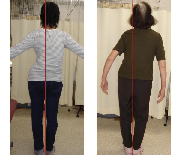 ch1-203png。 側弯症の多くは、改善できます。 脊椎側弯症で困っていませんか?脊椎側弯症の治療に最も有効なのが、カイロプラクティック、整体の脊椎矯正、骨盤矯正です。 脊柱側弯症には二種類のタイプがあります。 日常生活の癖が原因の脊椎側弯症と原因の特定できない背骨の変形を伴う特発性の脊柱側弯症です。 特発性の側弯症の場合は、完全に治癒させることは、できません。 しかし、完全に真っ直ぐにはできなくても歪みを改善することは、できます。 浜松市西区の脊椎側弯症の矯正で口コミで評判の整体、カイロプラクティックの治療院はコチラ。 日常生活の癖が原因の脊柱側弯症の多くは、改善することが、できます。 多くの側弯症で悩む人が治っています。 脊椎側弯症の治療を受けたいと思った方は、浜松市中西区の口コミで評判の整体、カイロプラクティックまで。 多くの側弯症は、整体、カイロプラクティックの治療で改善されます。 諦める必要はありません。 脊柱側弯症は、そのままにしておくとどんどん悪くなっていきます。 カイロプラクティック、整体の治療で治しましょう。 口コミで評判の浜松市西区の整体、カイロプラクティックの治療院は、コチラ。