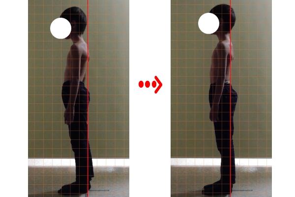 ch1-219jpg。 猫背でお悩みではありませんか?悪い姿勢や猫背は、悩んでいただけでは、改善されません。 大勢の人が、猫背などの悪い姿勢で、損をしていると思います。 頑張って、解決しようという気持ちになって猫背などの悪い姿勢の矯正を行う必要があります。 悪い姿勢や猫背は、改善しないと考えている人がほとんどです。 猫背などの悪い姿勢は、良くなります。 猫背矯正で最も効果的なのが、整体の骨格の矯正です。 静岡県磐田市周辺で、口コミで評判の整体、カイロプラクティックをお探しなら、コチラまで。 お年寄りから、子供まで、安心して矯正が受けられるソフトで痛みの無い、整体、カイロプラクティックです。 猫背などの悪い姿勢なら静岡県磐田市周辺で、口コミで評判の当院の整体、カイロプラクティックにお任せ下さい。 多くの猫背の患者様の、姿勢が改善しています。 悪い姿勢や猫背の治療なら静岡県磐田市周辺の口コミで評判のカイロプラクティック、整体の治療院である当院まで。 人間社会で生活するうえで、見た目は、とても大切です。 ほとんどの人は、第一印象で人を判断します。