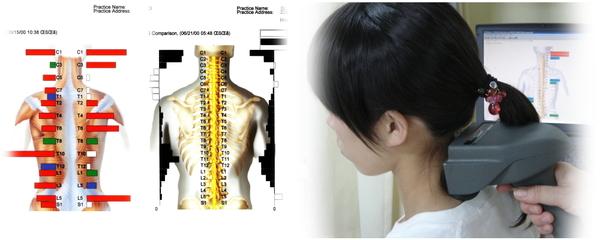 ch1-272png。。 肩凝りは、生活習慣と密接な繋がりがあり、生活環境を改めなければ、根本的に解決するのは難しいものです。 肩こり(肩の痛み)で悩んでいる人のカイロプラクティックの治療。 慢性の肩こりで悩んでいる人の大多数は、病院(整形外科など…)の診察を受けたり鍼治療やマッサージを受けたりしています。 しかし、その多くは、肩こりを何度も繰り返し治りません。 肩こりに日用生活が、どうして関係するのでしょうか?それは生活習慣が人体の脊椎、骨盤を歪ませるからです。 歪んだ脊椎、骨盤は、神経を圧迫し、さらに筋肉に大きな負荷をかけ筋肉や関節を疲労させてしまいます。 カイロプラクティックでは、背骨の関節などを矯正し骨格のバランスを整えます。 浜松市中区で口コミで評判の整体やカイロプラクティックなら、こちらがお薦めです。 肩凝りには、整体の脊椎の矯正がとても効果があります。 浜松市中区で口コミで評判の整体をお探しなら、こちらまで。
