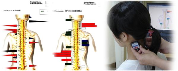 ch1-280png。 肩こり(肩の痛み)は、生活習慣と密接なつながりがあり、日用生活を改善しなければ、根本的に治すのは難しいものです。 肩こり(肩の痛み)で辛い人の整体、カイロプラクティックの治療。 慢性的な肩凝り(肩の痛み)で困っている人のほとんどは、病院の治療を受けたりマッサージや鍼治療を受けたりしています。 だけれども、のほとんどは、肩コリ(肩の痛み)を何度も再発し治りません。 肩こりに日用生活が、どうして関係するのでしょうか?それは日用生活が人体の脊椎、骨盤を歪ませるからです。 歪んだ脊椎は、神経や血管を圧迫し、さらに筋肉に大きな負荷をかけ筋肉を疲れさせてしまいます。 カイロプラクティックや整体では、脊椎、骨盤などを矯正し骨格のバランスを理想的な状態にします。 浜松市中区で口コミで評判の整体なら、こちらがお薦めです。 肩凝り(肩の痛み)には、整体の脊椎、骨盤の矯正がとても効果的です。 浜松市中区で口コミで評判の整体やカイロプラクティックをお探しなら、こちらまで。