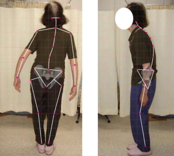 脊柱側弯症、整体