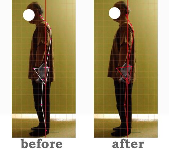 ストレートネックは改善できる!カイロプラクティックと整体の脊椎矯正と骨盤矯正。