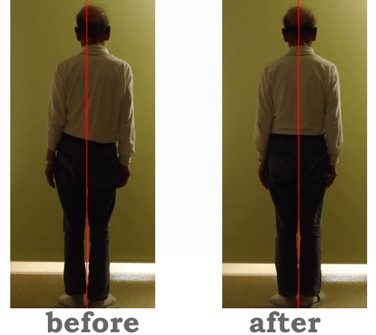 脊柱側弯症の矯正をしているカイロプラクティックと整体、整骨院(浜松市)