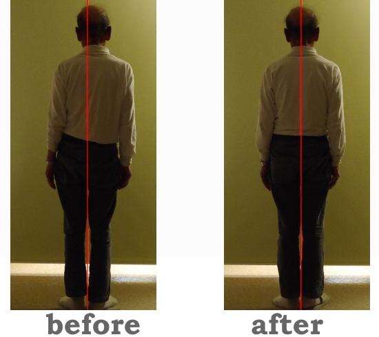 脊柱側湾症は治る?カイロプラクティックと整体の側湾症の矯正と改善方法