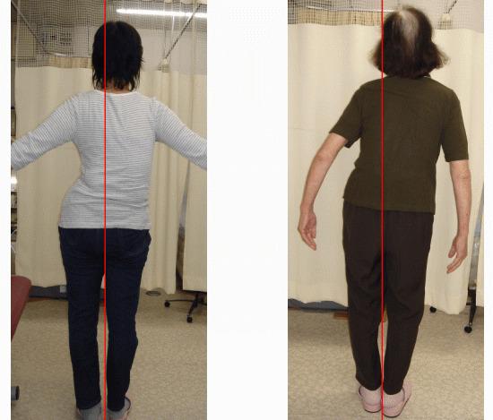 側弯症を治すなら、カイロプラクティック、整体がおすすめです。