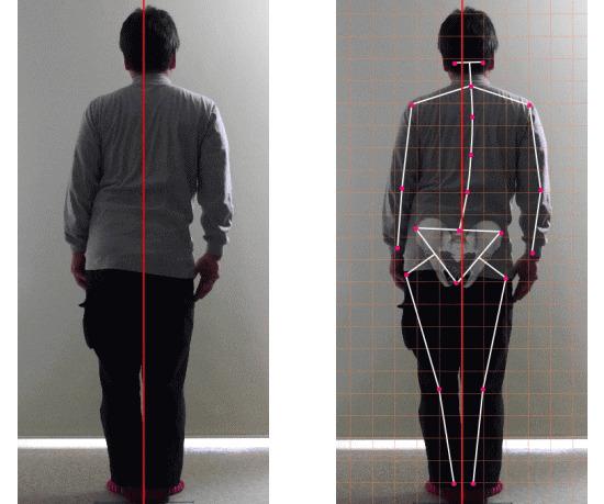 脊柱側弯症の治し方と背骨の矯正、骨盤の矯正