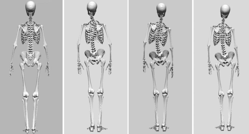 側湾症の矯正をしている浜松市のカイロプラクティック、整体、整骨院