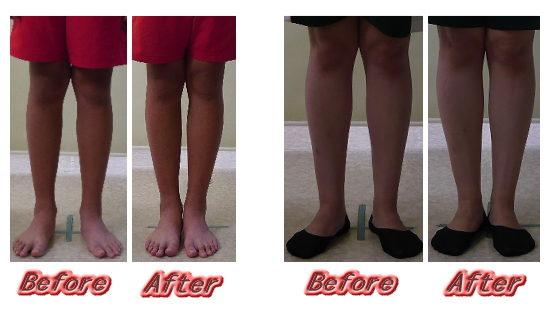 X脚矯正、浜松市、X脚治療